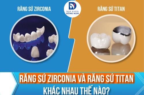 Răng Sứ Zirconia và Răng Sứ Titan Khác Nhau Thế Nào