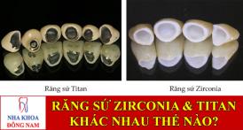 răng sứ zirconia và răng sứ titan khác nhau thế nào -1
