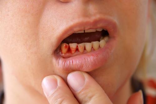 tác hại của việc xỉa răng bằng tăm -3