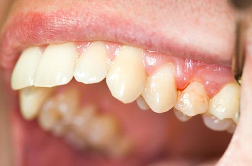 tác hại của việc xỉa răng bằng tăm -4