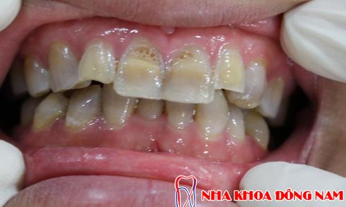 tẩy trắng răng lên được bao nhiêu phần trăm -4