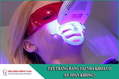 tẩy trắng răng tại nha khoa có an toàn không