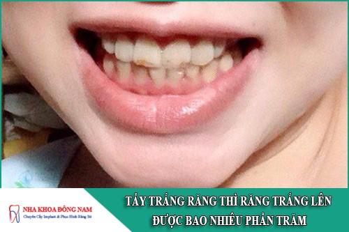 tẩy trắng răng thì răng trắng lên được bao nhiêu phần trăm