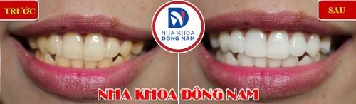 tẩy trắng răng thì răng trắng lên bao nhiêu phần trăm 2