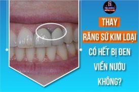 Thay răng sứ kim loại có hết bị đen viền nướu không