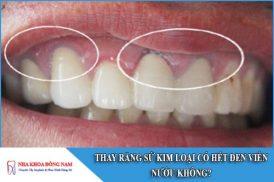 thay răng sứ kim loại có hết đen viền nướu không