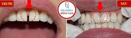 trám răng cửa bị to hơn răng kế bên thì phải làm sao 1