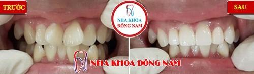 bọc sứ cho răng cửa bị xoay
