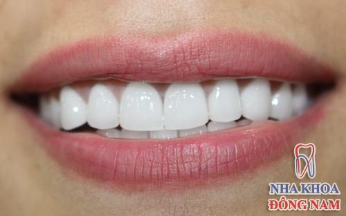 trám răng cửa bị to hơn răng kế bên thì phải làm sao 4