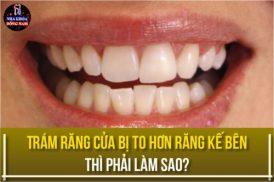 trám răng cửa bị to hơn răng kế bên thì phải làm sao