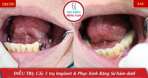 trồng răng vĩnh viễn bằng implant