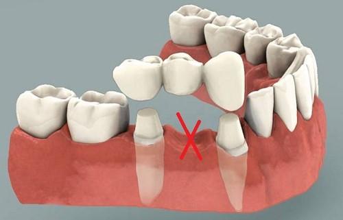 trồng cầu răng sứ