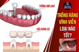 trồng răng vĩnh viễn loại nào tốt nhất