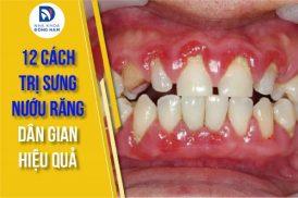 12 cách trị sưng nướu răng hiệu quả