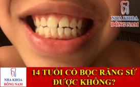 14 tuổi có bọc răng sứ được không -1