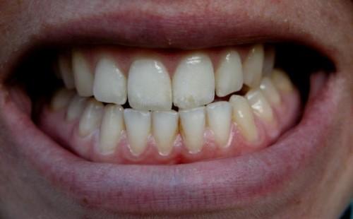 14 tuổi có bọc răng sứ được không 1