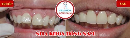 bọc 4 răng sứ cho răng cửa bị hô