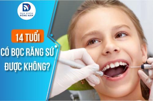 14 tuổi có bọc răng sứ được không