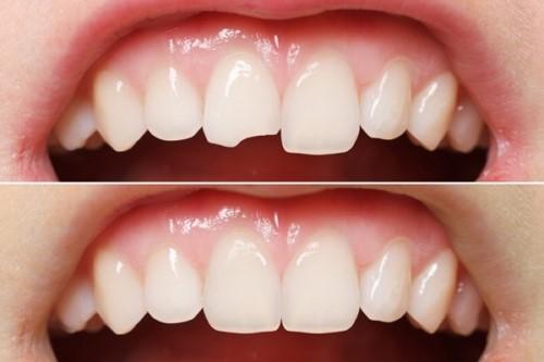 trám răng composite cho răng bị mẻ