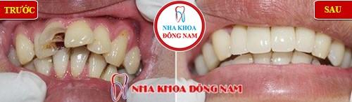 bọc răng sứ cho răng cửa điều trị tủy