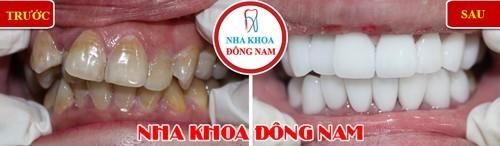 Bọc răng sứ chỉnh hàm trên bị hô, các răng mọc lệch lạc