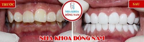 Bọc sứ 2 hàm điều trị răng hô