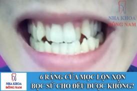 6 răng cửa mọc lộn xộn có bọc sứ cho đều được không -1
