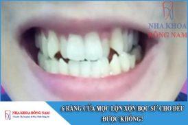 6 răng cửa mọc lộn xộn có bọc răng sứ cho đều được không