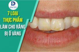 7 loại thực phẩm làm cho răng bị ố vàng