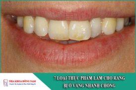 7 loại thực phẩm làm cho răng bị ố vàng nhanh chóng