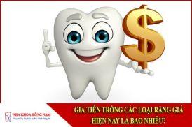 Giá tiền trồng các loại răng giả hiện nay là bao nhiêu