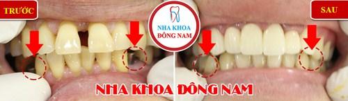 Mất 2 răng có nên cấy ghép implant để phục hồi không 3