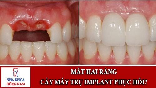 Mất 2 răng có nên cấy ghép implant để phục hồi không