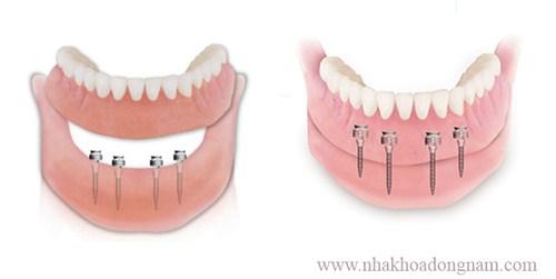 Mini implant là gì 1