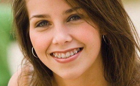 Niềng răng có đau không Biện pháp giảm đau sau khi niềng răng1