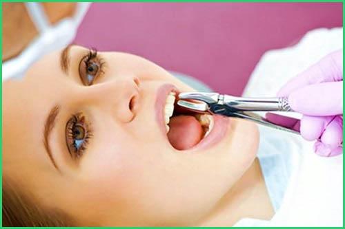 Niềng răng có đau không Biện pháp giảm đau sau khi niềng răng 2