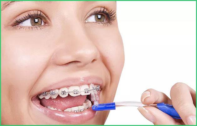 Niềng răng có đau không Biện pháp giảm đau sau khi niềng răng 5