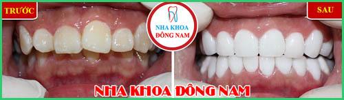 Niềng răng có đau không Biện pháp giảm đau sau khi niềng răng 6