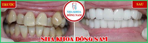 Niềng răng có đau không Biện pháp giảm đau sau khi niềng răng 7