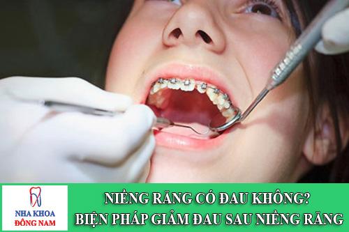 Niềng răng có đau không Biện pháp giảm đau sau khi niềng răng