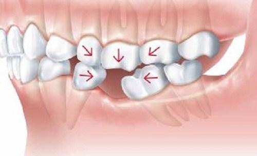 Tư Vấn Cấy Ghép Implant Cho Người Mới Nhổ Răng_2
