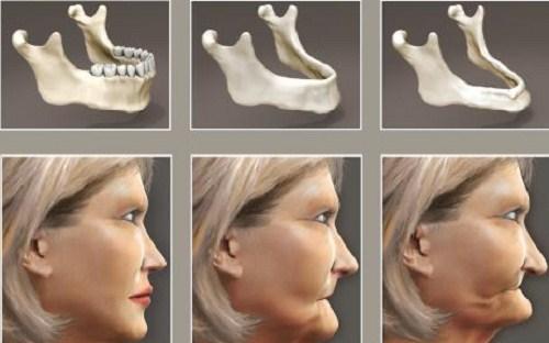 Tư Vấn Cấy Ghép Implant Cho Người Mới Nhổ Răng_