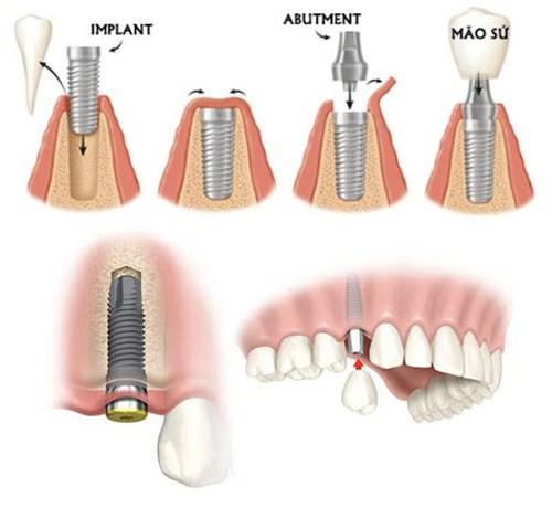 Tư Vấn Cấy Ghép Implant Cho Người Mới Nhổ Răng_4