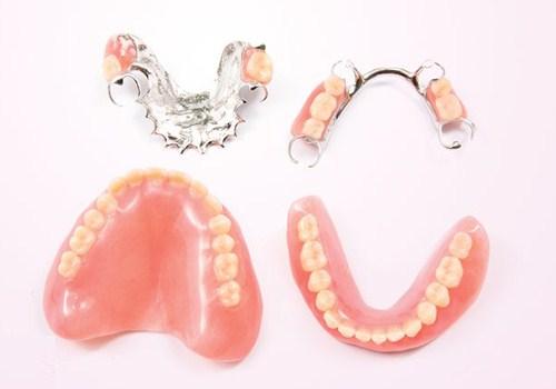 Vì Sao Nên Cấy Ghép Implant Thay Thế Cho Răng Mất-1