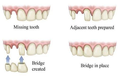Vì Sao Nên Cấy Ghép Implant Thay Thế Cho Răng Mất-2