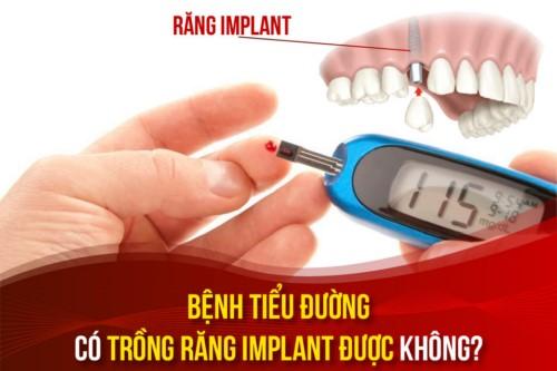 Bệnh tiểu đường có trồng răng Implant được không