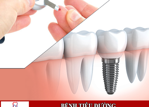 Bệnh tiểu đường trồng răng implant được không