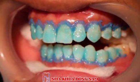 ê buốt răng sau khi tẩy trắng răng thì phải làm sao 1