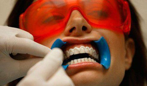 ê buốt răng sau khi tẩy trắng răng thì phải làm sao 3