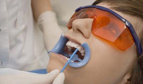 ê buốt răng sau khi tẩy trắng răng thì phải làm sao 4